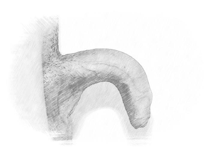 Incurvamento congenito del pene pre-operatorio